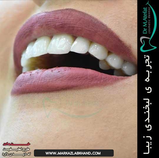 تصاویر قبل و بعد متخصص دندانپزشکی ترمیمی و زیبایی