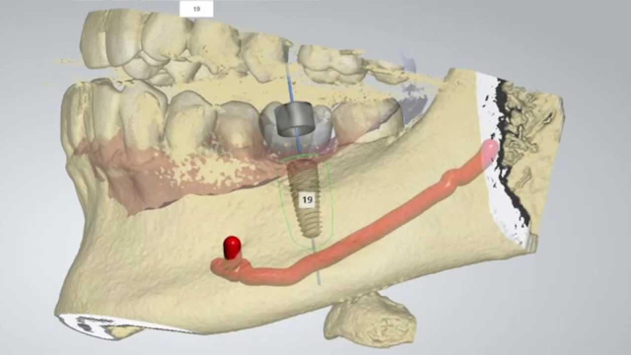 ملزومات درمان ایمپلنت دیجیتال دندان