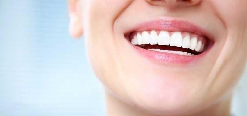 اصلاح طرح لبخند با کامپوزیت
