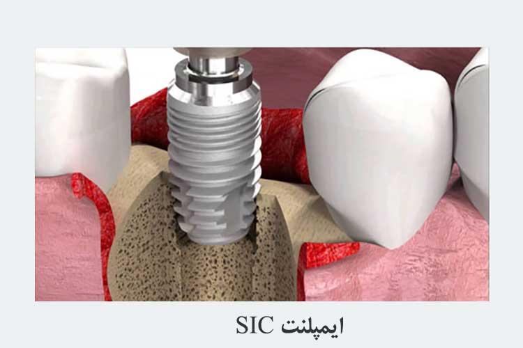 ایمپلنت دندان سوئیسی- SIC