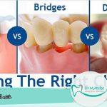 روش های کاشت دندان بدون ایمپلنت