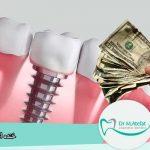 ایمپلنت دندان قسطی