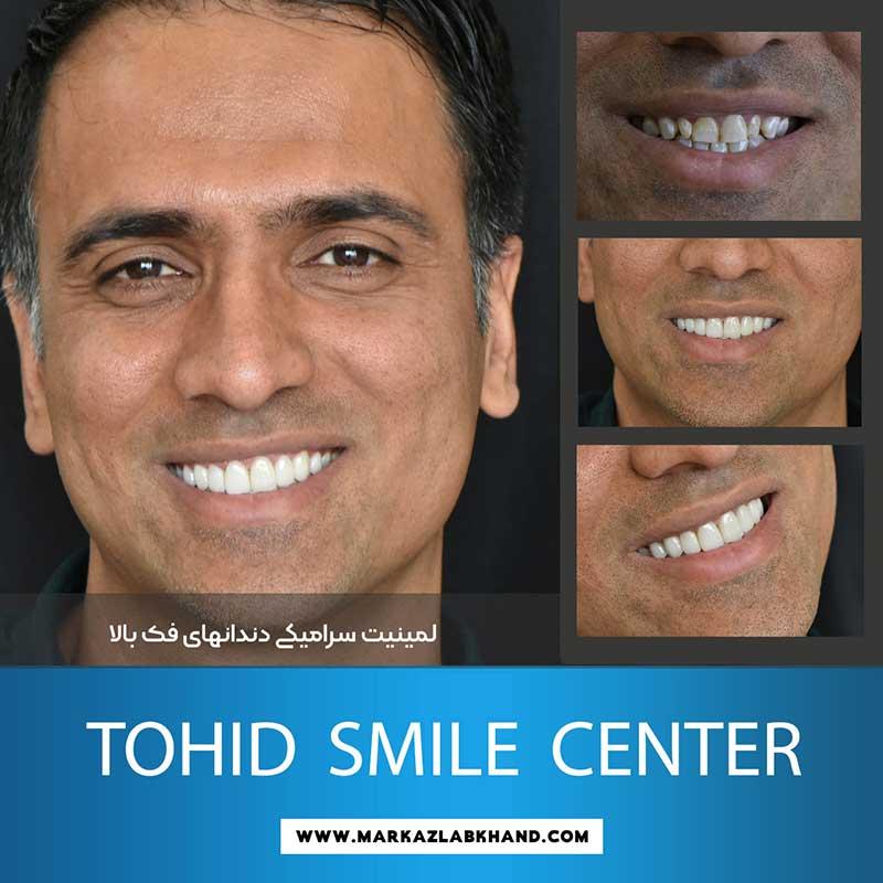 لمینیت سرامیکی دندان های فک بالا توسط دکتر محمد عاطفت متخصص دندانپزشکی ترمیمی در اصفهان