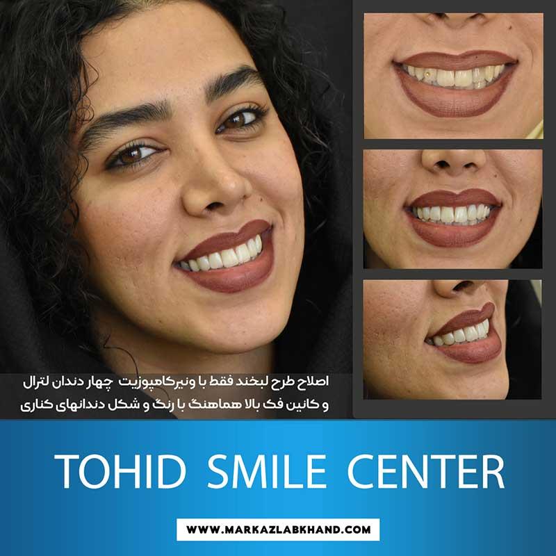 اصلاح طرح لبخند با ونیر کامپوزیت توسط دکتر محمد عاطفت