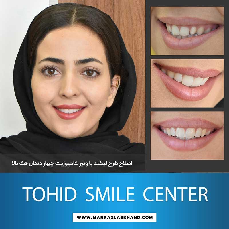 اصلاح طرح لبخند با ونیر کامپوزیت توسط دکتر محمد عاطفت متخصص دندانپزشکی زیبایی در اصفهان
