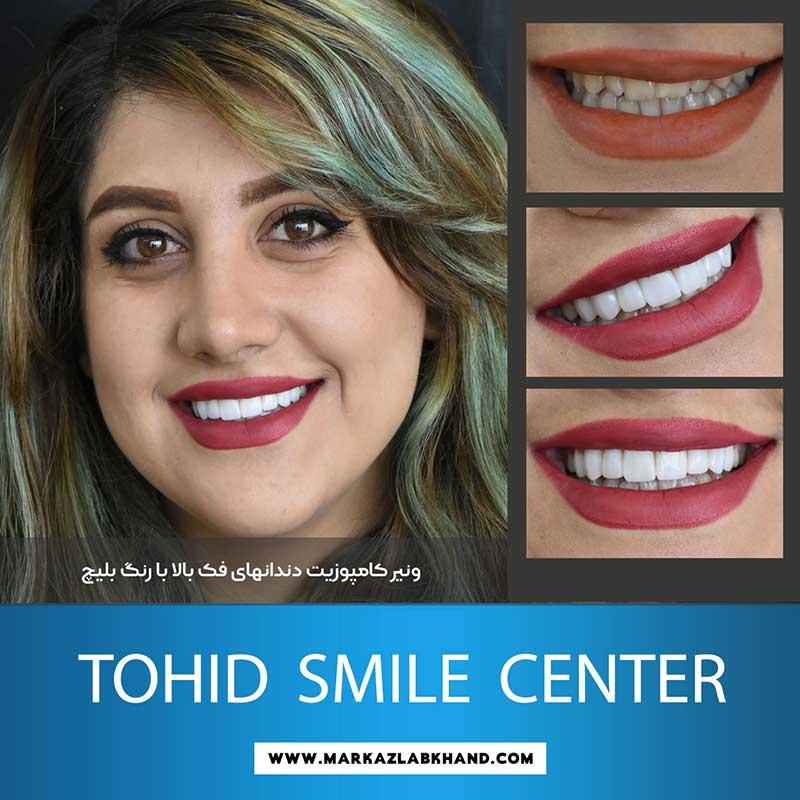 ونیر کامپوزیت دندان های فک بالاتوسط دکتر محمد عاطفت متخصص دندانپزشکی ترمیمی و زیبایی در اصفهان