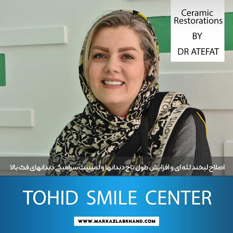 اصلاح لبخند لثه ای توسط دکتر محمد عاطفت متخصص دندانپزشکی ترمیمی و زیبایی در اصفهان