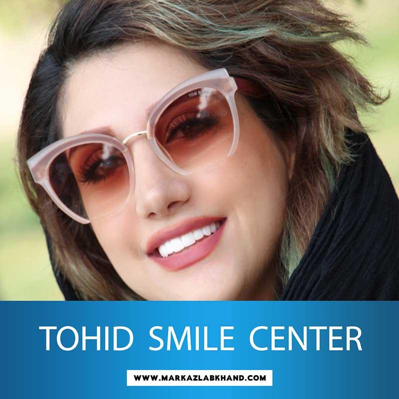 لبخند هالیوودی توسط دکتر عاطفت متخصص دندانپزشکی ترمیمی و زیبایی در اصفهان