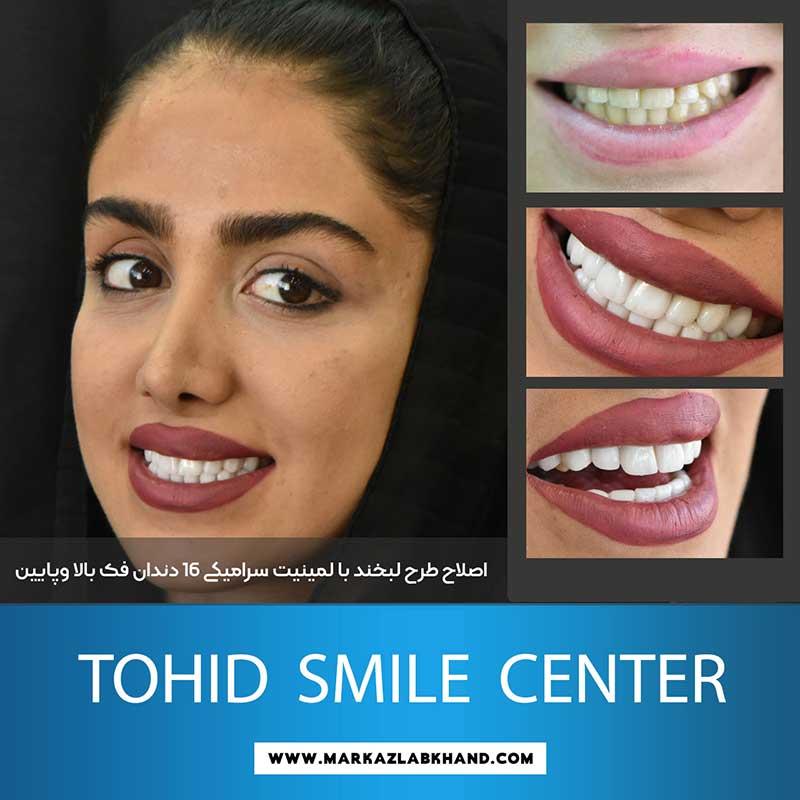 اصلاح طرح لبخند با لمینیت سرامیکی توسط دکتر محمد عاطفت