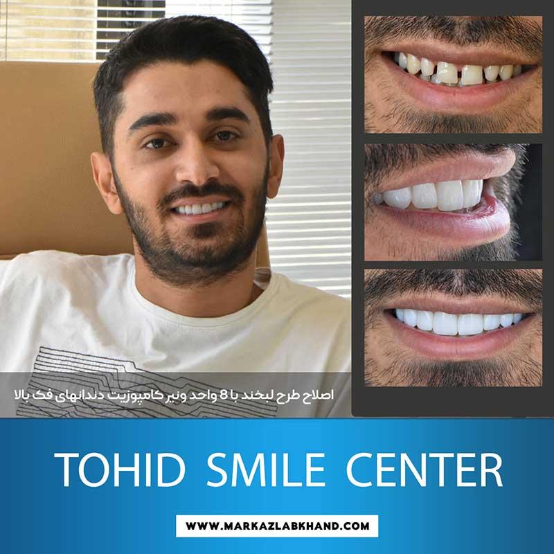 اصلاح طرح لبخند با ونیر کامپوزیت توسط دکتر محمد عاطفت متخصص دندانپزشکی ترمیمی و زیبایی در اصفهان