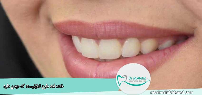 ونیر کامپوزیت طبیعی برای 4 دندان فک بالا