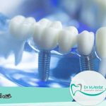 جرم گیری ایمپلنت دندان