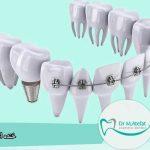 ایمپلنت دندان همراه با ارتودنسی