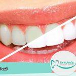 5 ترفند سریع برای سفید کردن دندان ها