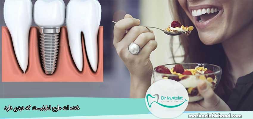 رژیم غذایی مناسب پس از ایمپلنت دندان