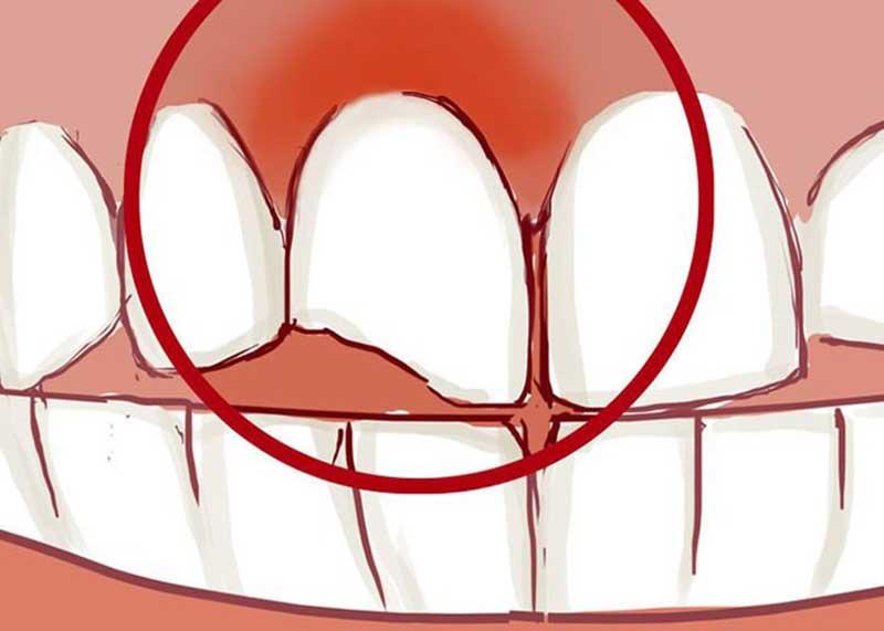 ترمیم دندان شکسته شده یا لب پر شده