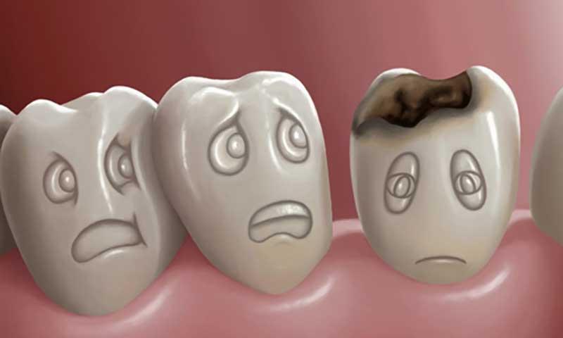 آیا لمینت به دندان آسیب می رساند ؟