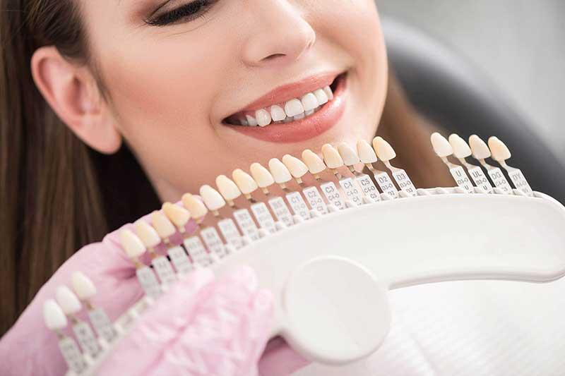 انتخاب رنگ کامپوزیت دندان
