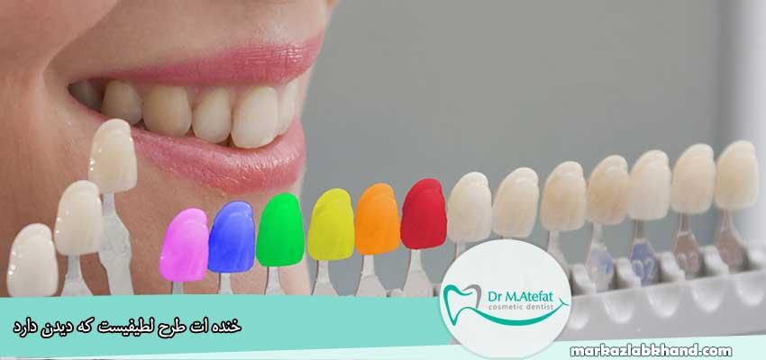 بهترین رنگ برای کامپوزیت دندان