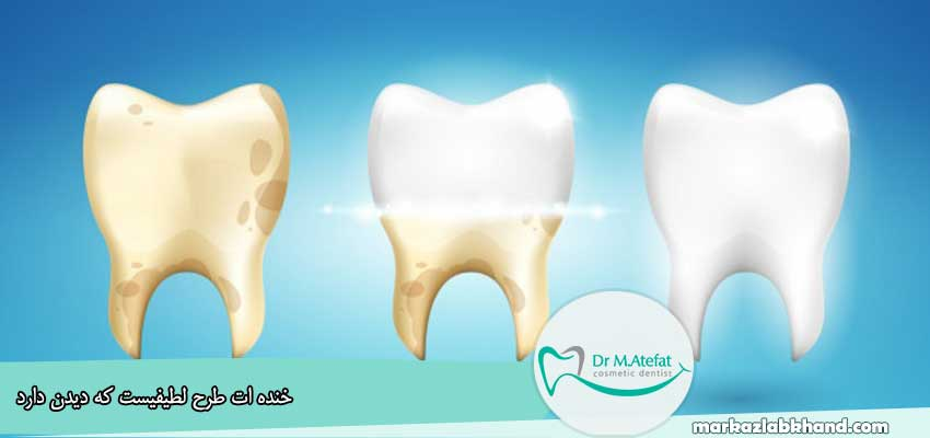 سفید کردن دندان با سرکه سیب