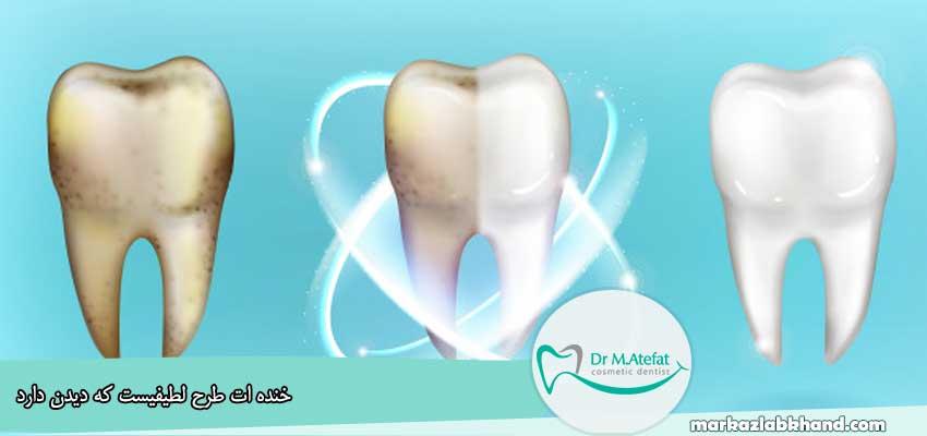 از بین بردن لک دندان با جوش شیرین