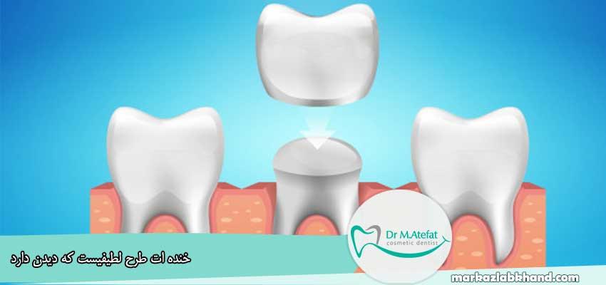 آیا کامپوزیت باعث پوسیدگی دندان میشود؟