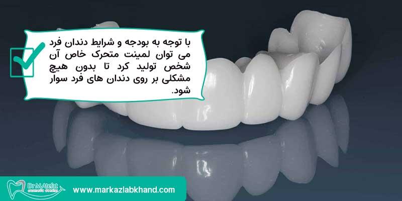 تولید لمینت متحرک دندان